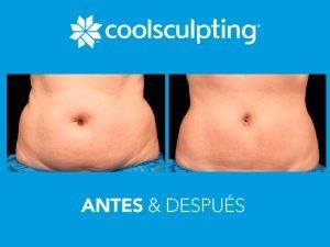 Coolsculpting Buaramanga - Antes y Después