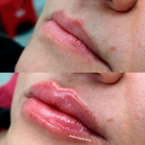 labios-hermosos-3