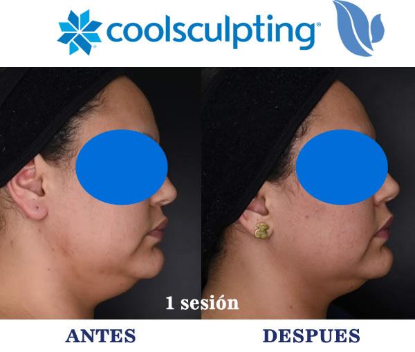 Antes - Después - Tratamiento de Papada con Coolsculpting - Bucaramanga