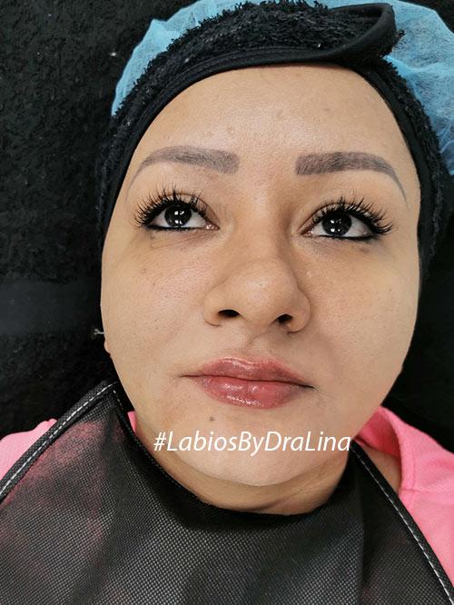 Relleno de labios con ácido hialurónico Colombia