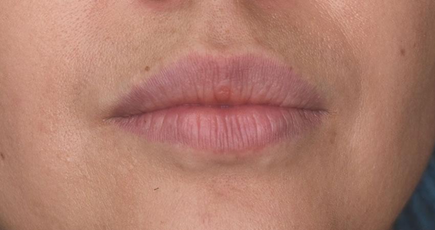 Labios sin Acido Hialurónico - Antes
