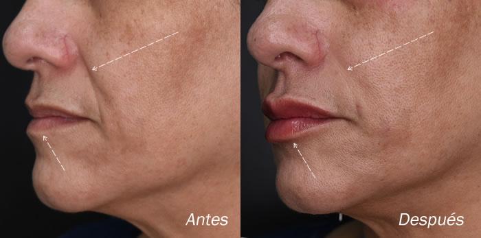 Rejuvenecimiento Facial con Acido Hialurónico en Bucaramanga